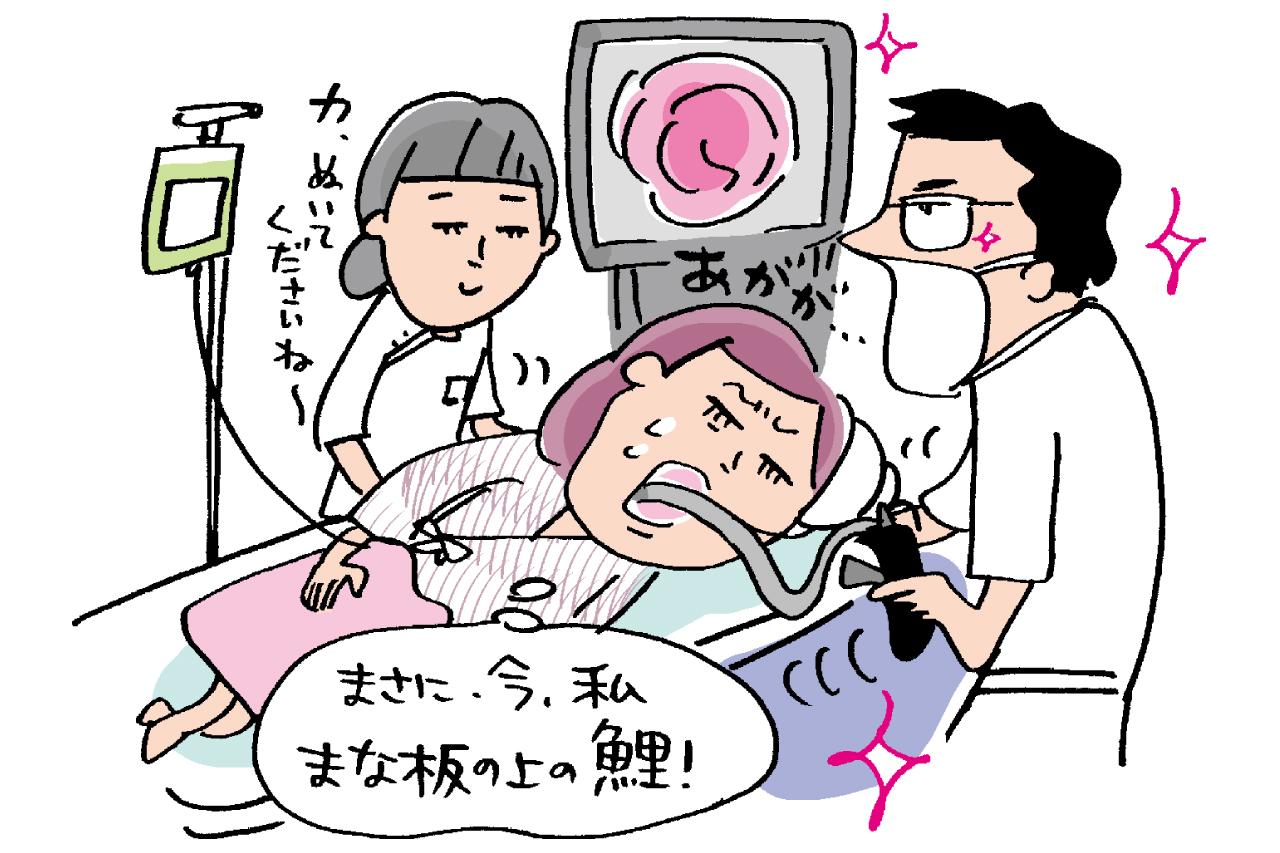 胃がんと大腸がん検査は内視鏡がベスト/健康診断の真実⑥