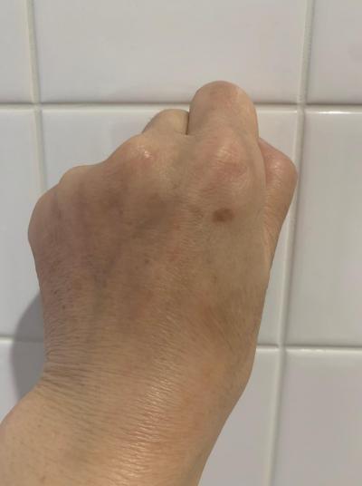 吉田つぶやき_左手甲のシミ